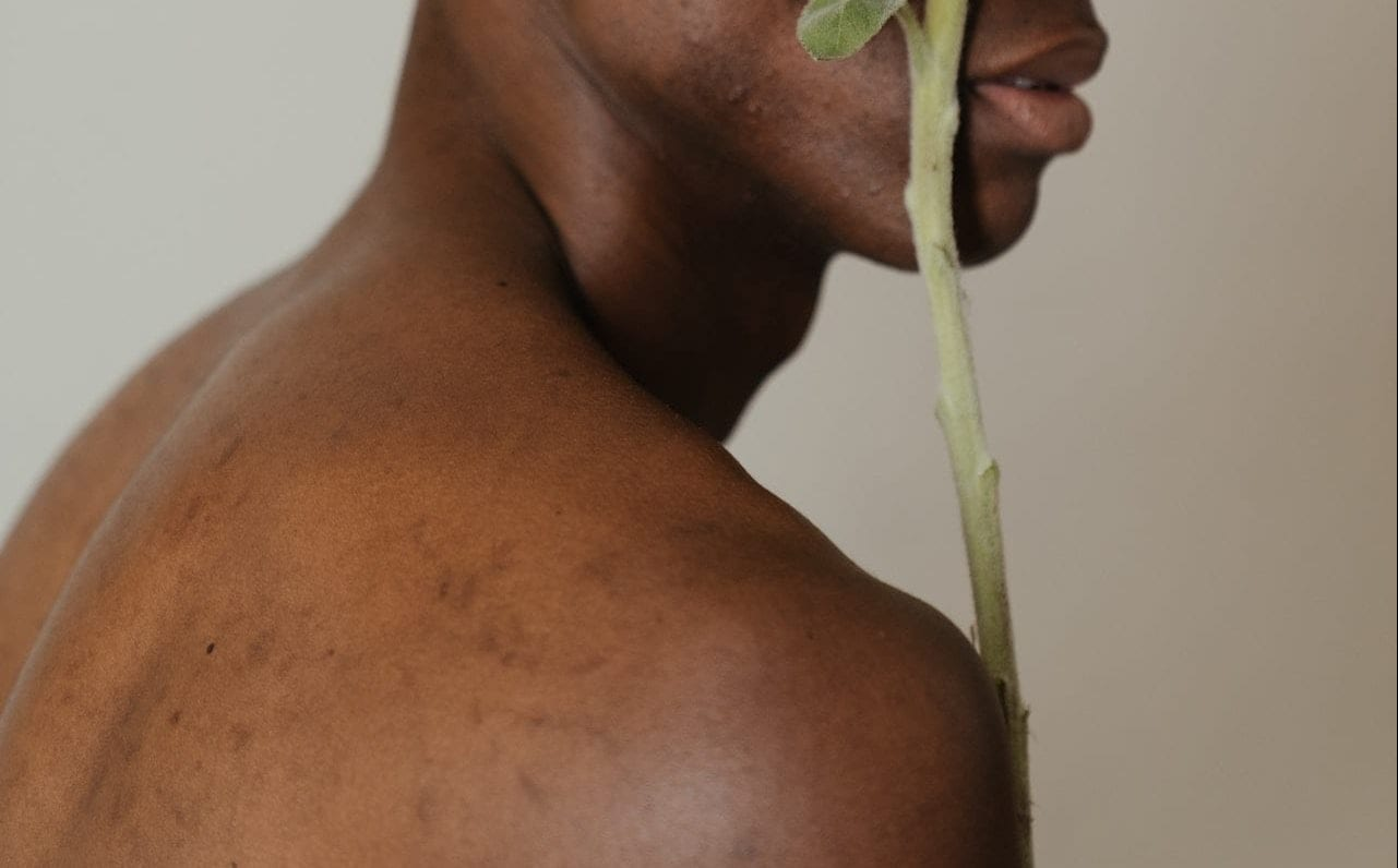 Body acne is a serious issue, learn how you can get rid of it quickly