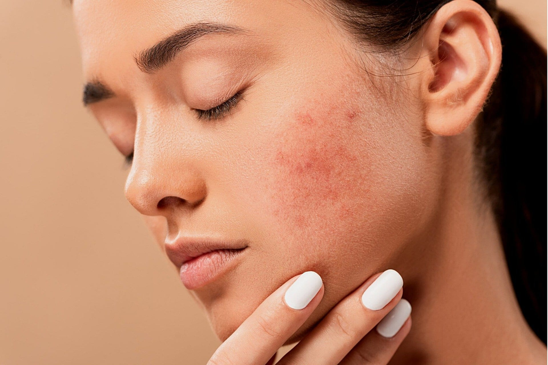 Learn about the differences between fungal acne vs closed comedones