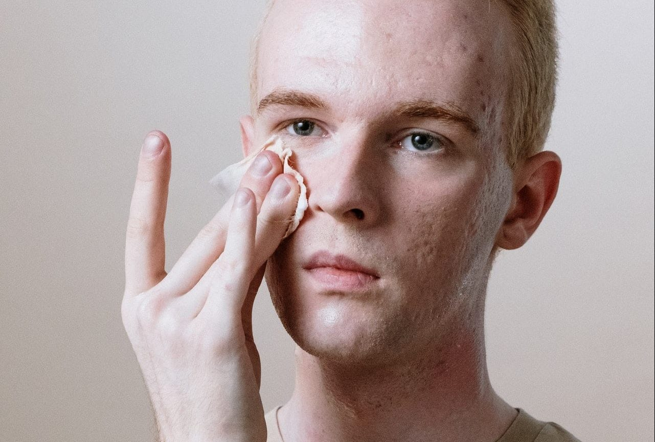 Acne scar removal is a really hard process. That's why home remedies are especially useful.